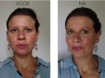 katrien voor en na